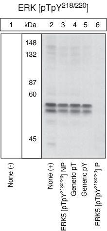 Phospho-ERK5 (Tyr218, Tyr220) Antibody (44-612G) in Western Blot