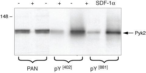 Phospho-FAK2 (Tyr402) Polyclonal Antibody