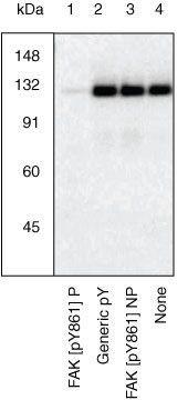 Phospho-FAK (Tyr861) Antibody (44-626G) in Western Blot