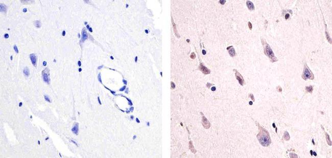 Phospho-FAK2 (Tyr579) Antibody (44-632G) in Immunohistochemistry (Paraffin)