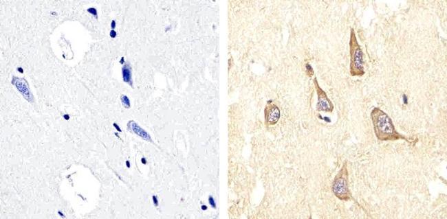 Phospho-FAK2 (Tyr579, Tyr580) Polyclonal Antibody