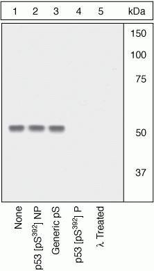 Phospho-p53 (Ser392) Antibody (44-640G) in Western Blot