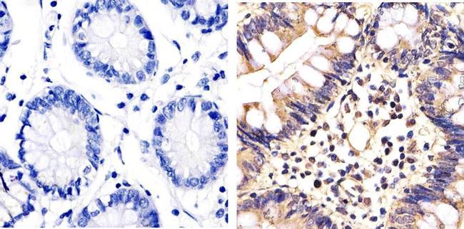 ERK1/ERK2 Antibody (44-654G) in Immunohistochemistry (Paraffin)