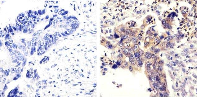 SRC Antibody (44-655G) in Immunohistochemistry (Paraffin)