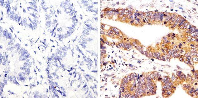 Phospho-SRC (Tyr418) Antibody (44-660G)