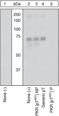 Phospho-PKR (Thr451) Antibody (44-668G) in Western Blot