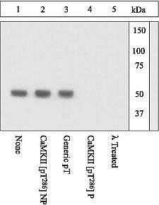 Phospho-CaMKII alpha (Thr286) Antibody (44-674G)