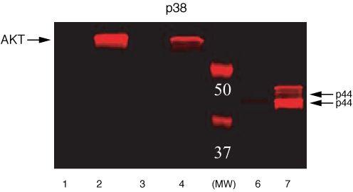 Phospho-ERK1/ERK2 (Thr185, Tyr187) Antibody (44-680G)