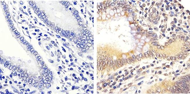Phospho-ERK1/ERK2 (Thr185, Tyr187) Antibody (44-680G) in Immunohistochemistry (Paraffin)