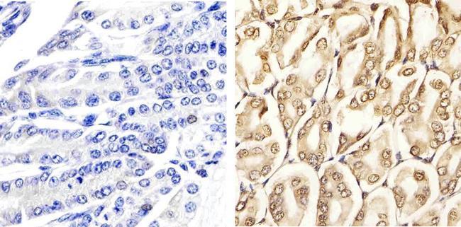 Phospho-p44 MAPK + p42 MAPK pThr185 + pTyr187 Antibody (44-680G)
