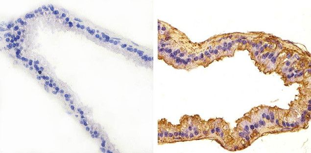 JNK1 Antibody (44-690G) in Immunohistochemistry (Paraffin)