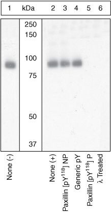 Phospho-Paxillin (Tyr118) Antibody (44-722G) in Western Blot