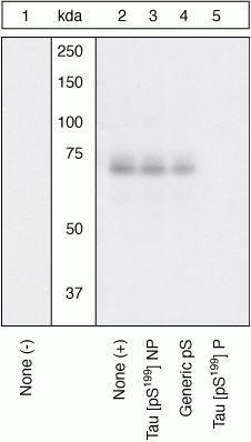 Phospho-Tau (Ser199) Antibody (44-734G) in Western Blot