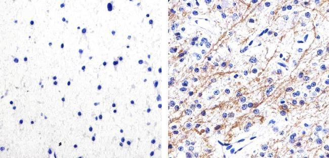 Phospho-Tau (Ser262) Antibody (44-750G) in Immunohistochemistry (Paraffin)