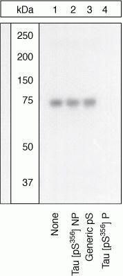 Phospho-Tau pSer356 Antibody (44-751G)