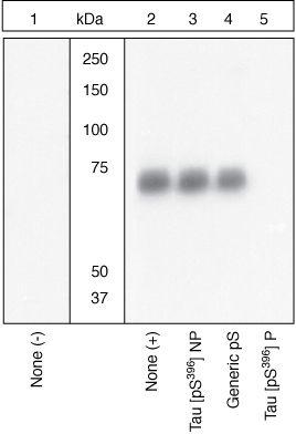 Phospho-Tau (Ser396) Antibody (44-752G)