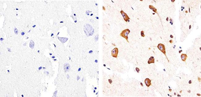Phospho-Tau (Ser404) Antibody (44-758G)