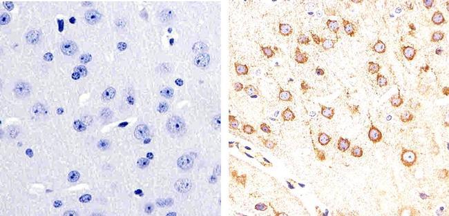 Phospho-Tau (Ser404) Antibody (44-758G) in Immunohistochemistry (Paraffin)
