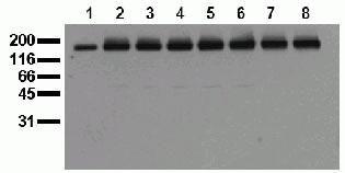 Phospho-EGFR (Tyr1045) Antibody (44782M)