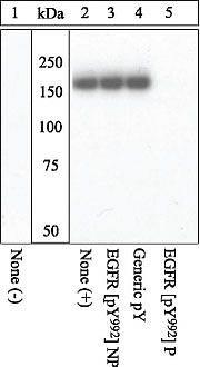 Phospho-EGFR (Tyr992) Antibody (44-786G) in Western Blot