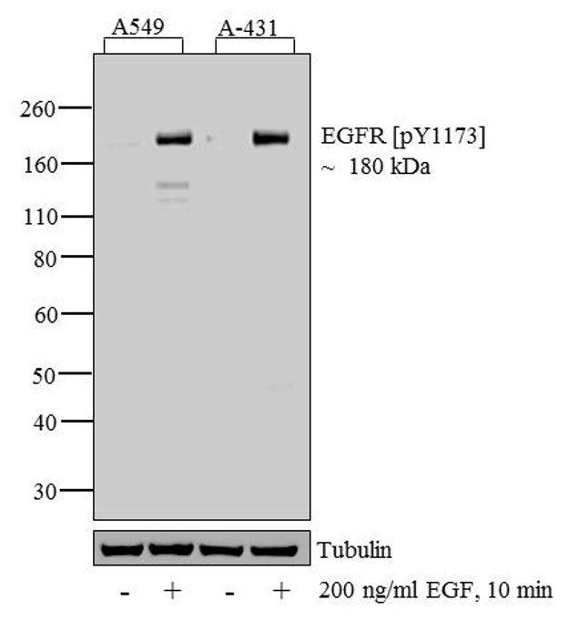 Phospho-EGFR (Tyr1086) Antibody (44-790G) in Western Blot