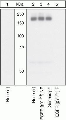 Phospho-EGFR (Tyr1148) Antibody (44-792G) in Western Blot