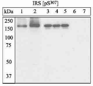 Phospho-IRS1 (Ser307) Antibody (44-813G) in Western Blot
