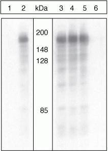 Phospho-IRS1 (Ser312) Antibody (44-814G)