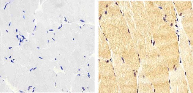 Phospho-IRS1 pTyr612 Antibody (44-816G)