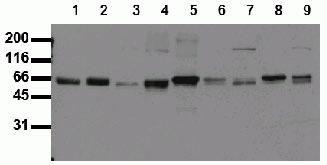 SHC Antibody (44829M)