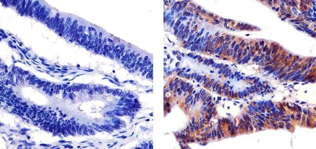 Phospho-SHC (Tyr239, Tyr240) Antibody (44-830) in Immunohistochemistry (Paraffin)