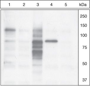 Phospho-Cortactin (Tyr421) Antibody (44-854G) in Western Blot