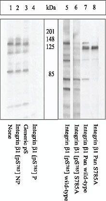 Phospho-ITGB1 (Ser785) Antibody (44-870G)