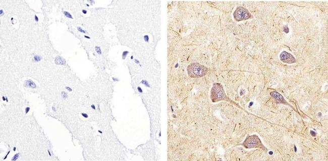 Phospho-RSK1 (Ser221) Antibody (44-924G) in Immunohistochemistry (Paraffin)