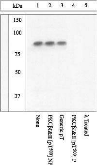 Phospho-PKC beta-1,2 (Thr500) Antibody (44-955G) in Western Blot