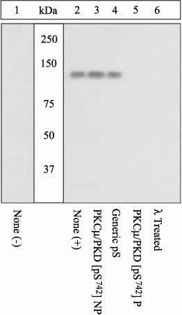 Phospho-PKC mu (Ser742) Antibody (44-961G)