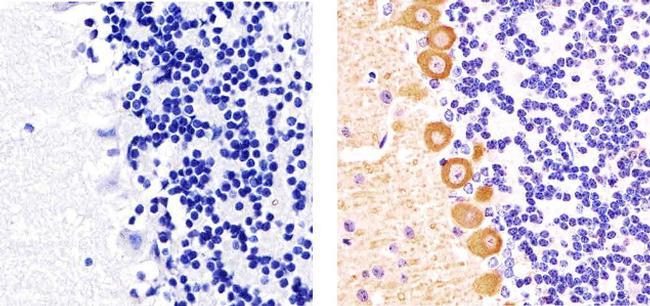 Phospho-PKC gamma (Thr655) Antibody (44-965) in Immunohistochemistry (Paraffin)