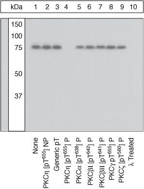 Phospho-PKC eta (Thr655) Antibody (44-969) in Western Blot