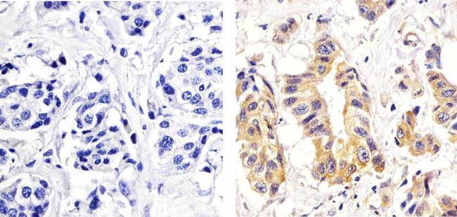 Phospho-PKC delta (Ser664) Antibody (44-976G) in Immunohistochemistry (Paraffin)