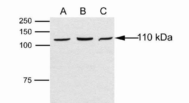 DAB2IP Antibody (48-7300)