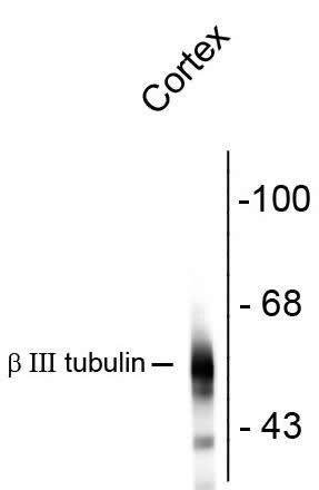 beta Tubulin Antibody (480011) in Western Blot