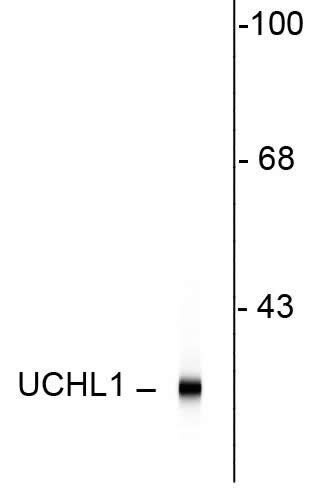 UCHL1 Antibody (480012) in Western Blot