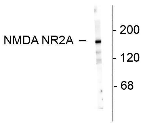 NMDAR2A Antibody (480031)