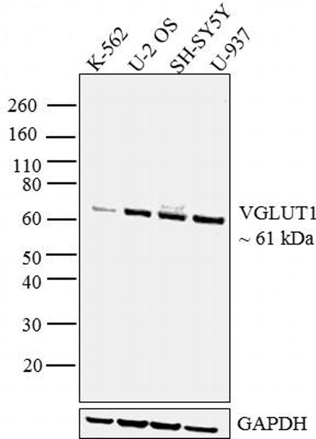 VGLUT1 Antibody (48-2400) in Western Blot