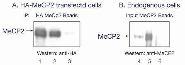 MECP2 Antibody (49-1029)
