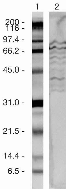 SUZ12 Antibody (49-1035) in Western Blot