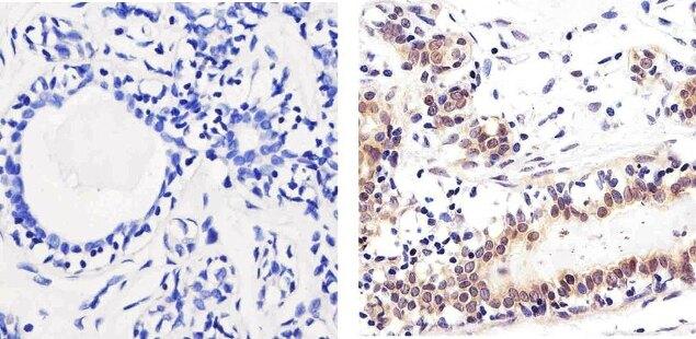 SMAD2 Antibody (51-1300) in Immunohistochemistry (Paraffin)