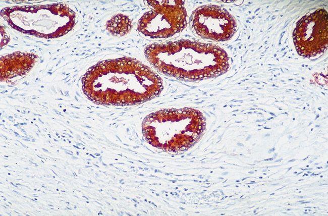PTEN Antibody (51-2400) in Immunohistochemistry