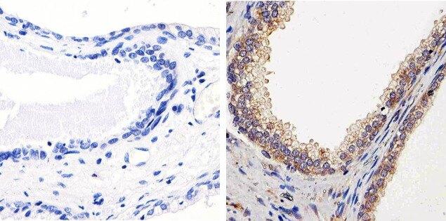 PTEN Antibody (51-2400) in Immunohistochemistry (Paraffin)