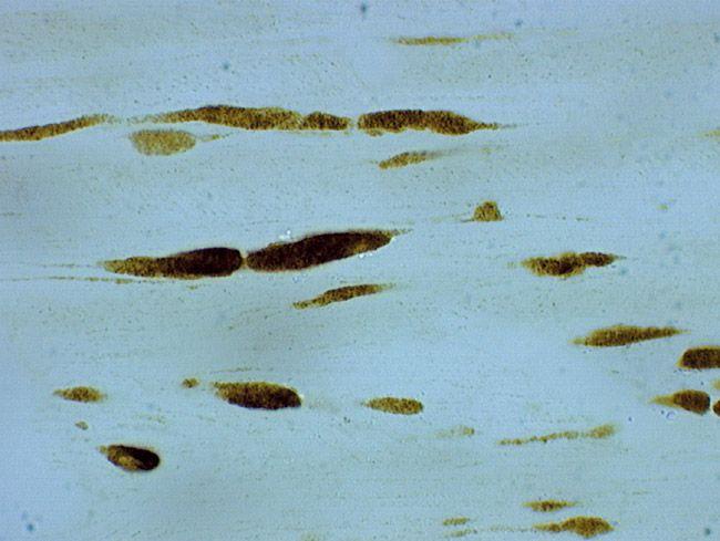 beta Amyloid Antibody (51-2700)